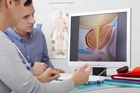 мужчина и врач смотрят на экран монитора