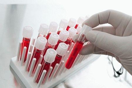 Нормы и отклонение общего анализа крови на простатический специфический антиген (ПСА) при простатите