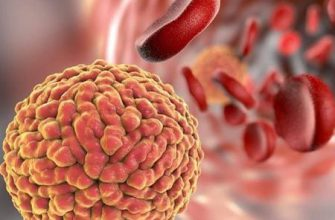 Острый и хронический бактериальный простатит: все о микробном заболевании